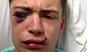 Young Man Beaten With a Beer Bottle for Being Gay