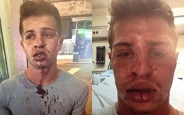 Young man beaten for kissing boyfriend at Burger King.