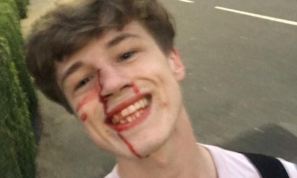 Gay Man Shares Bloody Selfie After Scrap With Homophobe